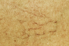 Vene varicose sul piedino. Macro Fotografie Stock