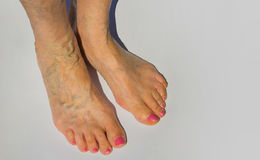 Vene varicose sull'gambe femminili Fotografie Stock Libere da Diritti