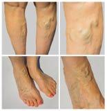 Vene varicose sull'gambe femminili Immagini Stock Libere da Diritti
