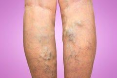 Vene varicose sull'gambe femminili Immagine Stock