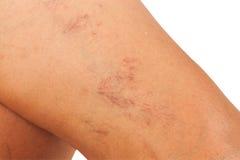 Vene varicose sulle gambe Fotografie Stock Libere da Diritti
