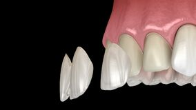 Veneer installation procedure over central incisor and lateral incisor