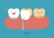 Veneers teeth of dental Royalty Free Stock Images
