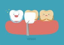 Veneers teeth of dental. Illustrator Royalty Free Stock Images