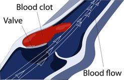 Venous thrombosis Stock Photo