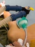 Ventilazione del polmone artificiale Fotografie Stock Libere da Diritti