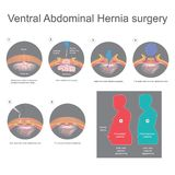Ventral hernia is a bulge of tissues through an opening of weakn. Ess within your abdominal wall muscles. Info graphic vector royalty free illustration
