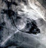 Ventricolografia cardiaca Cateterizzazione fotografie stock libere da diritti