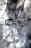 Ventricolografia cardiaca Cateterizzazione immagine stock libera da diritti