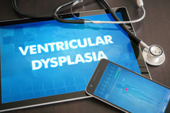 Ventricular dysplasia (heart disorder) diagnosis medical concept. On tablet screen with stethoscope royalty free stock photos