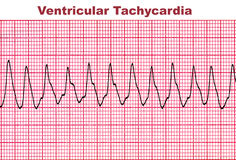 Ventricular Tachycardia - Deadly Heart Arrhythmia. Ventricular tachycardia (VT) is a tachycardia, or fast heart rhythm, that originates in one of the ventricles Royalty Free Stock Image