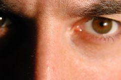 Verärgertes Auge Lizenzfreie Stockbilder