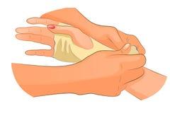 Verband in het geval van verwonding van polsverbinding stock illustratie
