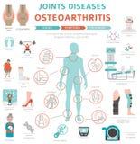 Verbindet Krankheiten Arthritis, Arthrosesymptome, Behandlung I stock abbildung