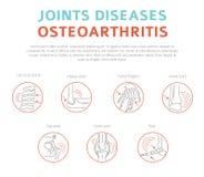 Verbindet Krankheiten Arthritis, Arthrosesymptome, Behandlung I vektor abbildung