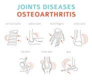 Verbindet Krankheiten Arthritis, Arthrosesymptome, Behandlung I lizenzfreie abbildung