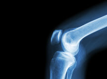 Verbinding van de film x-ray knie met artritis (Jicht, Reumatoïde artritis, Septische artritis, Osteoartritisknie) en leeg gebied Royalty-vrije Stock Fotografie