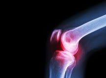 Verbinding van de film x-ray knie met artritis (Jicht, Reumatoïde artritis, Septische artritis, Osteoartritisknie) en leeg gebied Royalty-vrije Stock Afbeelding