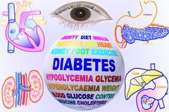 In Verbindung stehende Schlüsselwortkugel des Diabetes mit menschlichem Körperteil Lizenzfreies Stockfoto