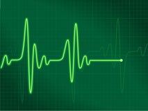 Verde del cardiograma Foto de archivo