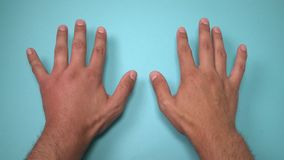 Vergelijking van twee mannelijke die handen door bij of wesp worden gestoken De hand die, ontsteking, roodheid is tekens van besm stock video