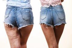Vergleich von Beinen mit und ohne Cellulite Stockfoto