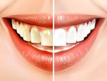 Vergleich von Zähnen Stockbild