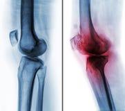 Vergleich zwischen normalem menschlichem Knie u. x28; linkes Bild u. x29; und Arthroseknie u. x28; rechtes Bild u. x29; an den co stock abbildung