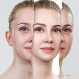 Vergleichen Sie vom alten Foto mit Akne und neuer gesunder Haut stockbild