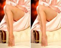 Vergleichsbeine einer Frau ohne und mit Lizenzfreie Stockfotos