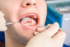 Verificação ascendente próxima do dentista imagem de stock