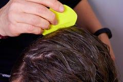 Verificando o cabelo para ver se há piolhos fotografia de stock