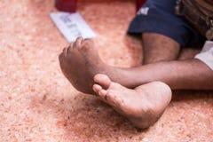 Verkrüppeltes Bein des jungen Mannes von der Geburt sitzen auf dem Boden für das Bitten Stockfoto