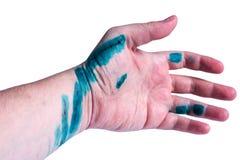 Verkratzte Hand behandelt mit Antiseptikum Stockfoto