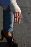 Verletzte Hand Stockbild
