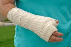 Verletzte Hand und Arm Lizenzfreies Stockbild