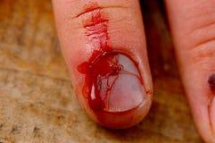 Verletzter Finger. Stockbild