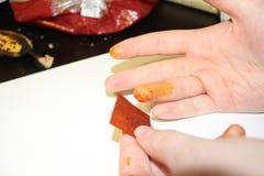 Verletzter Finger, der behandelt wird stockfoto