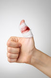 Verletzter Finger mit blutigem Verband Stockfoto