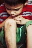 Verletzter Junge mit geriebenem Knie Lizenzfreie Stockfotos