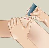 Verletztes heilendes Knie Stockfoto