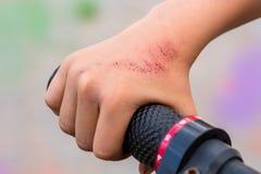 Verletzung, wenn ein Fahrrad gefahren wird lizenzfreie stockfotos