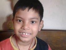 Verloren tanden Stock Afbeeldingen