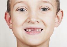 Verlust von Milchzähnen in den Kindern Lizenzfreie Stockfotografie