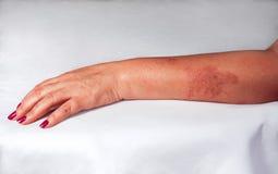 Vermelhidão da queimadura na mão da mulher Fotografia de Stock