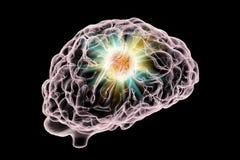 Vernietiging van hersenentumor stock illustratie