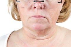 Verouderende huid Stock Foto's