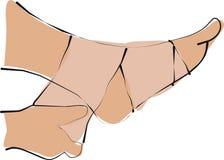 Verpakkend verband van pijnvoet en pols vector illustratie