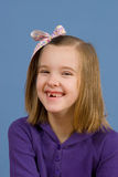 Verschiedenartigkeit-Serie - verlorene Zähne Lizenzfreies Stockbild
