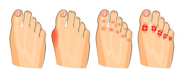 Verschiedener Endschaden Entzündung und Arthritis stock abbildung